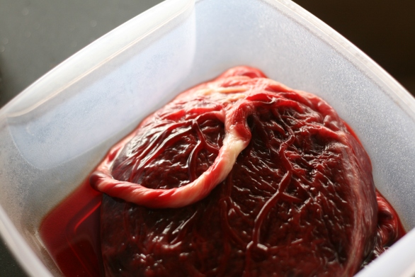 Placenta in a tupperware box!